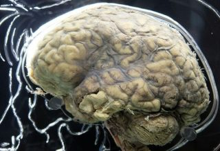 Connecting the Brain to the Rest of the Body